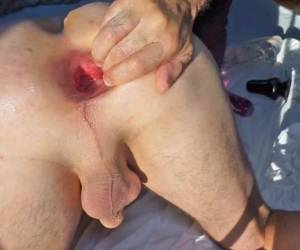 Anal Fistfuck And Gape Sept. 2017