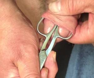 Foreskin With Scissors